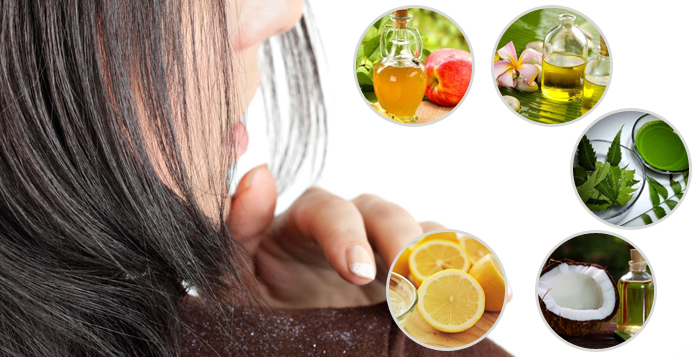 Photo of 5 Home Remedies For Dandruff